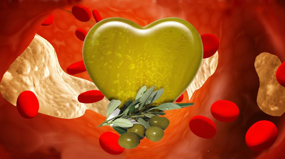 El virgen extra y el Colesterol